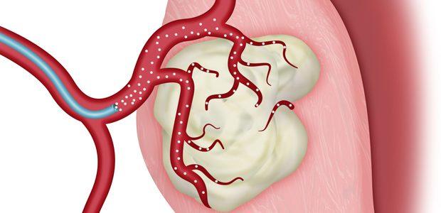 Uterine Fibroid Embolization: An Effective Alternative to Hysterectomy